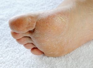Fungal Infections | Sepsis Alliance