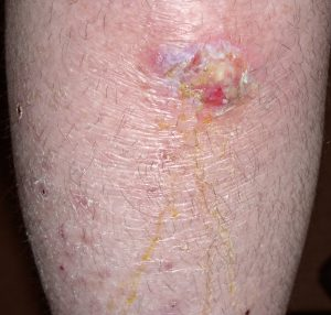 Cellulitis | Sepsis Alliance